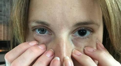 2017_07_26 Så här ser man ut efter att ha fått pupill- vidgande ögondroppar!